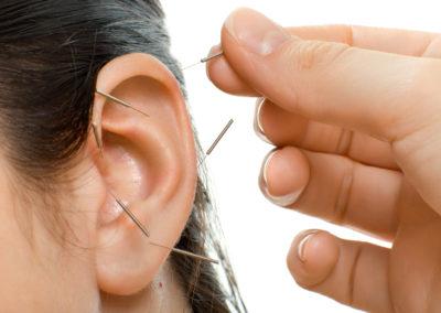 Akupunktur-Nadeln-Ohr